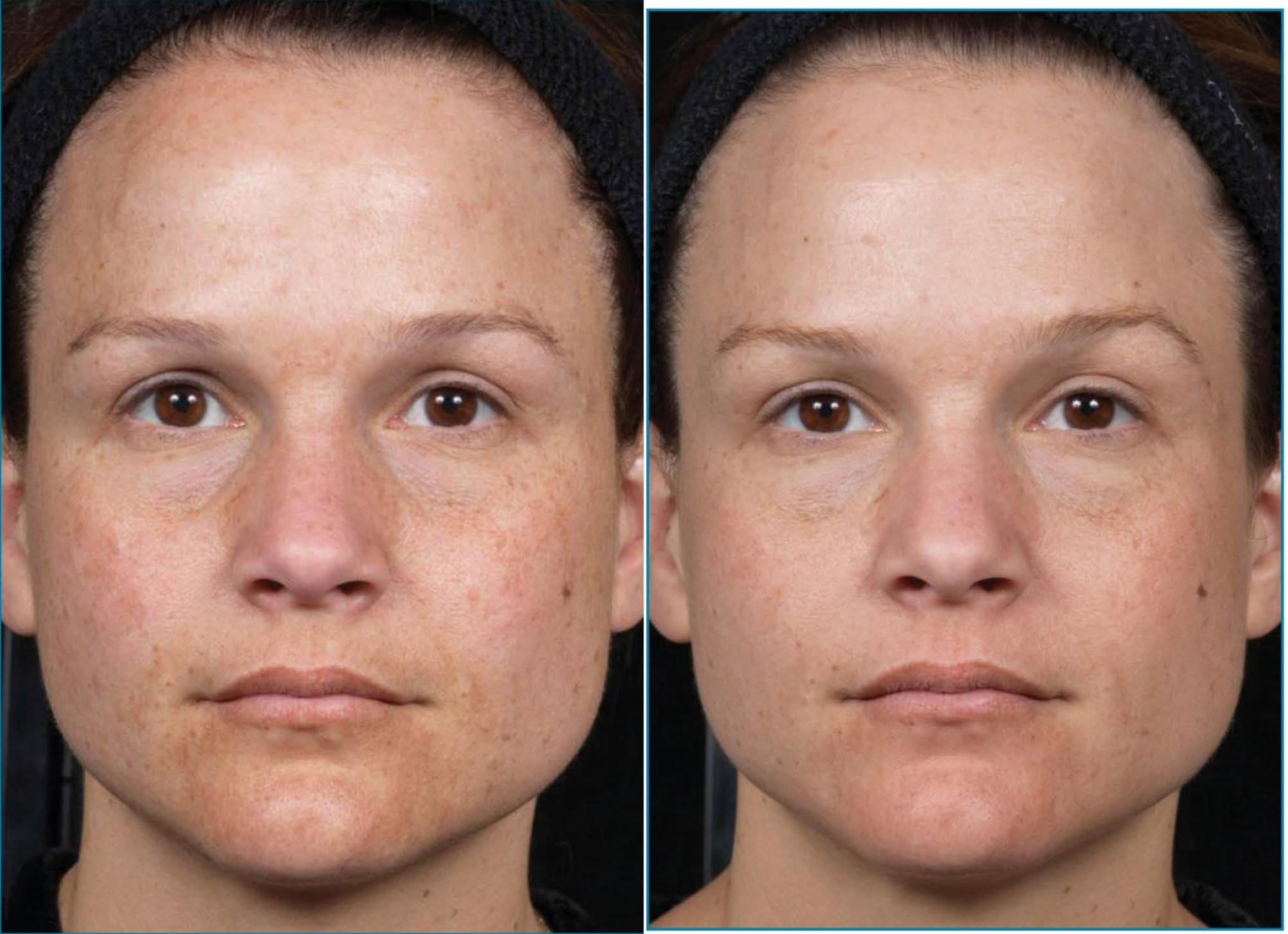 Clear + Brilliant Case 23 Before & After Front | Houston, TX | DermSurgery Associates