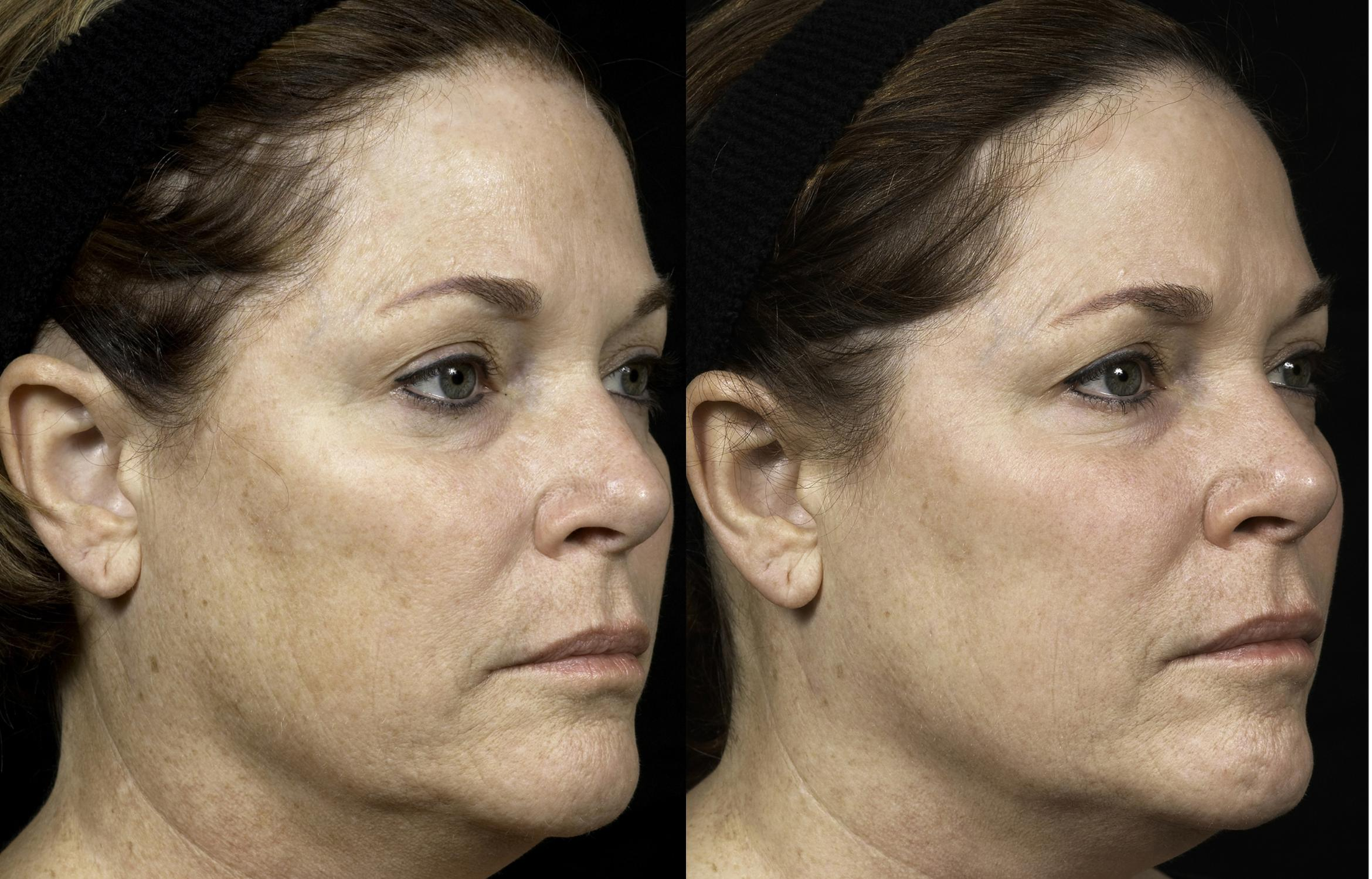 Fraxel® Case 4 Before & After Right Oblique | Houston, TX | DermSurgery Associates