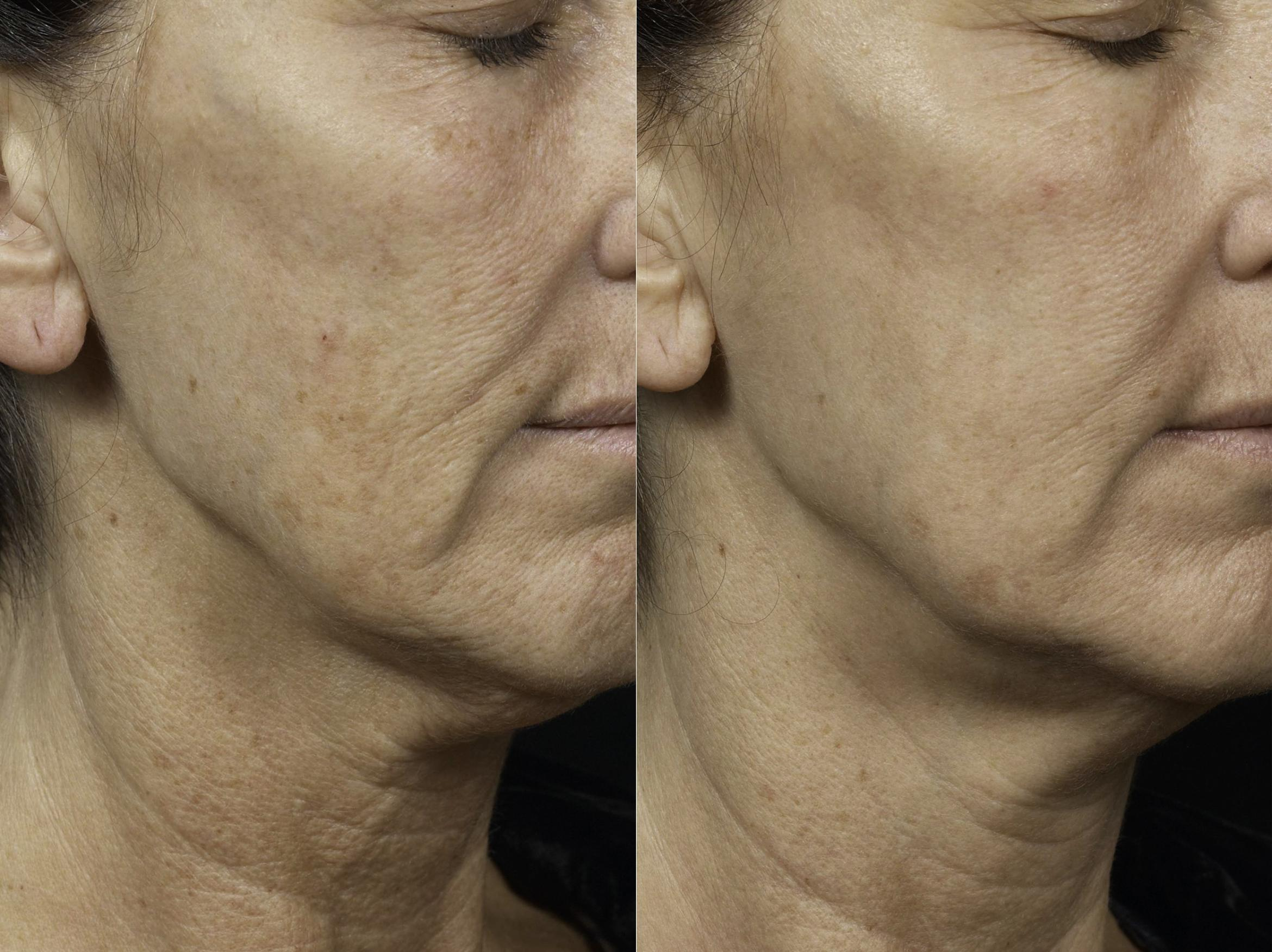 Fraxel® Case 5 Before & After Right Oblique | Houston, TX | DermSurgery Associates