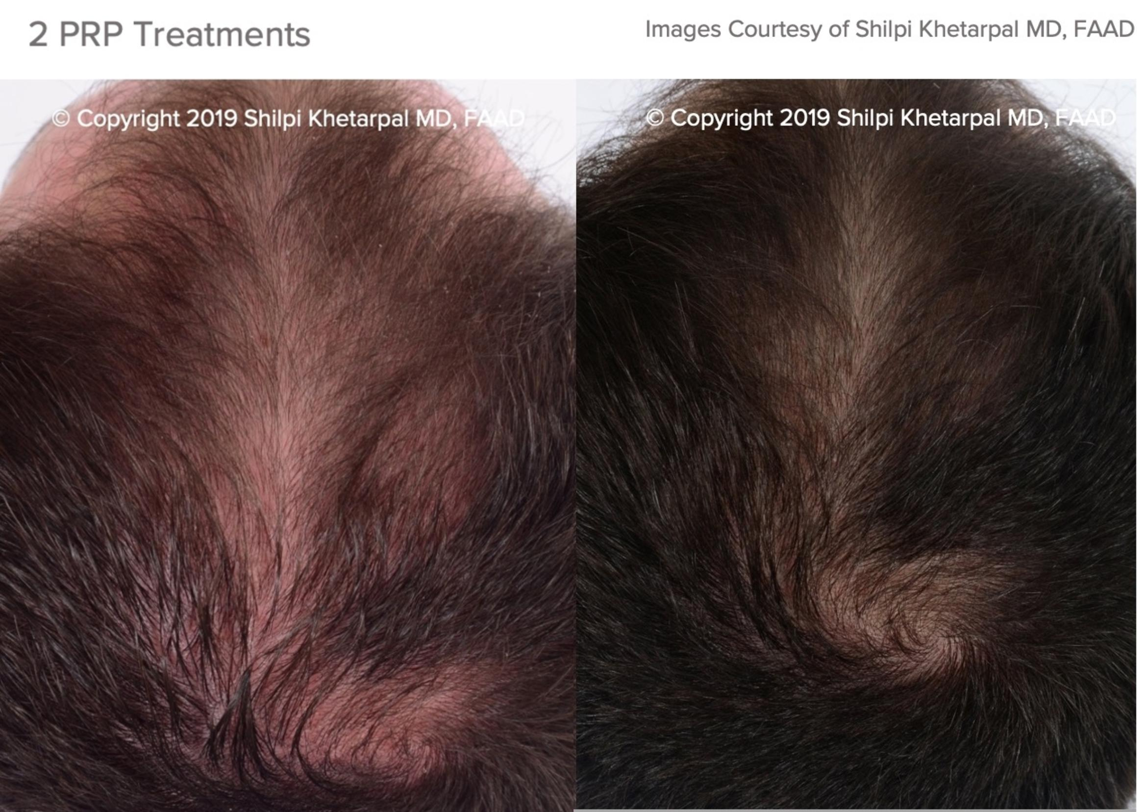 Hair Restoration Case 16 Before & After Top of Head Front | Houston, TX | DermSurgery Associates