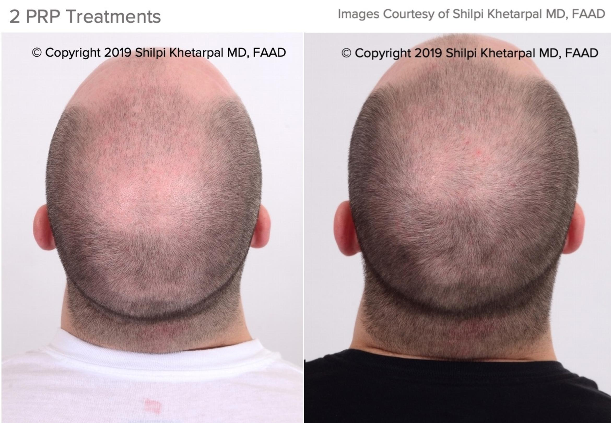 Hair Restoration Case 17 Before & After Top of Head Back | Houston, TX | DermSurgery Associates