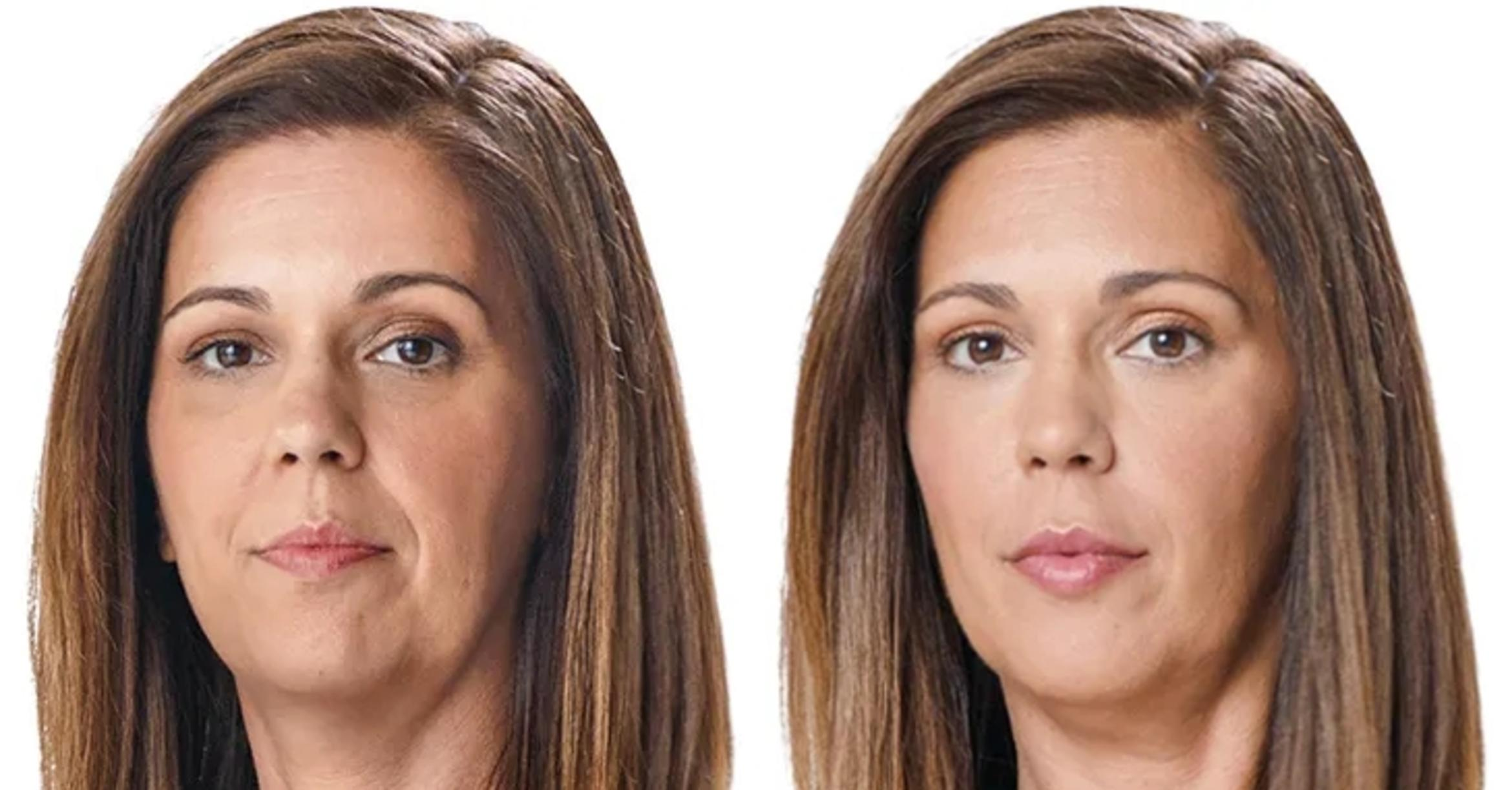 JUVÉDERM® Case 6 Before & After Front | Houston, TX | DermSurgery Associates