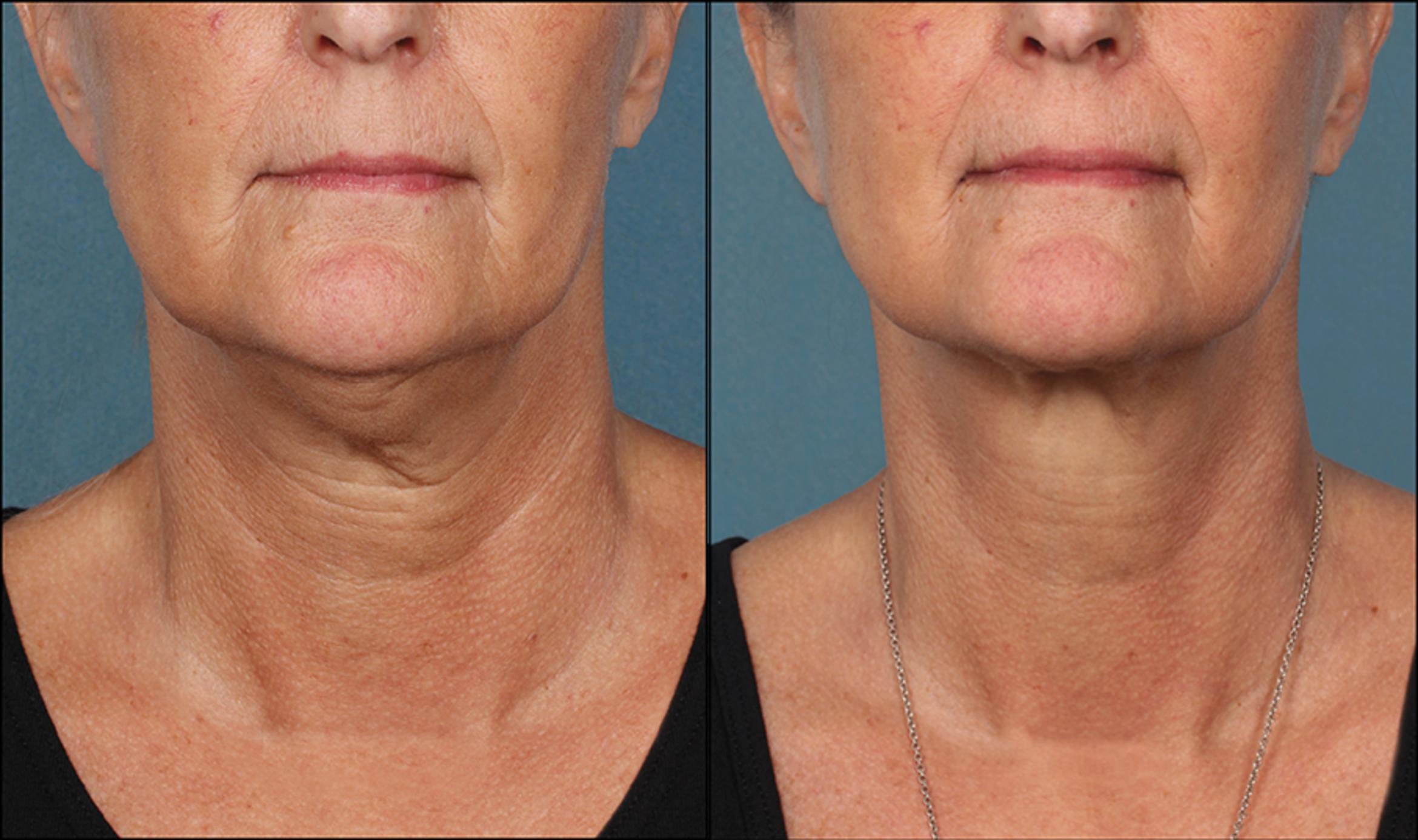 KYBELLA® Case 2 Before & After Front | Houston, TX | DermSurgery Associates