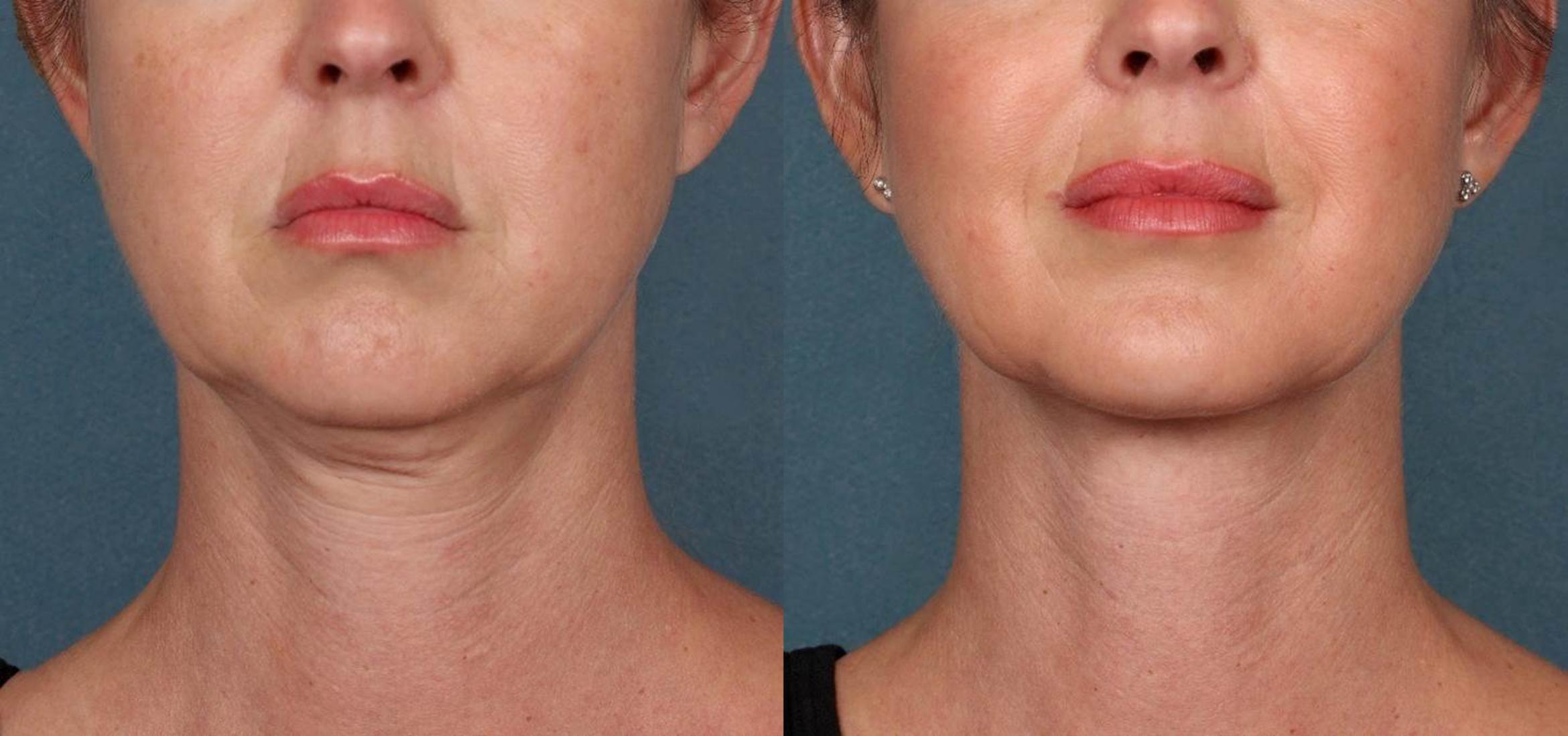 KYBELLA® Case 3 Before & After Front | Houston, TX | DermSurgery Associates
