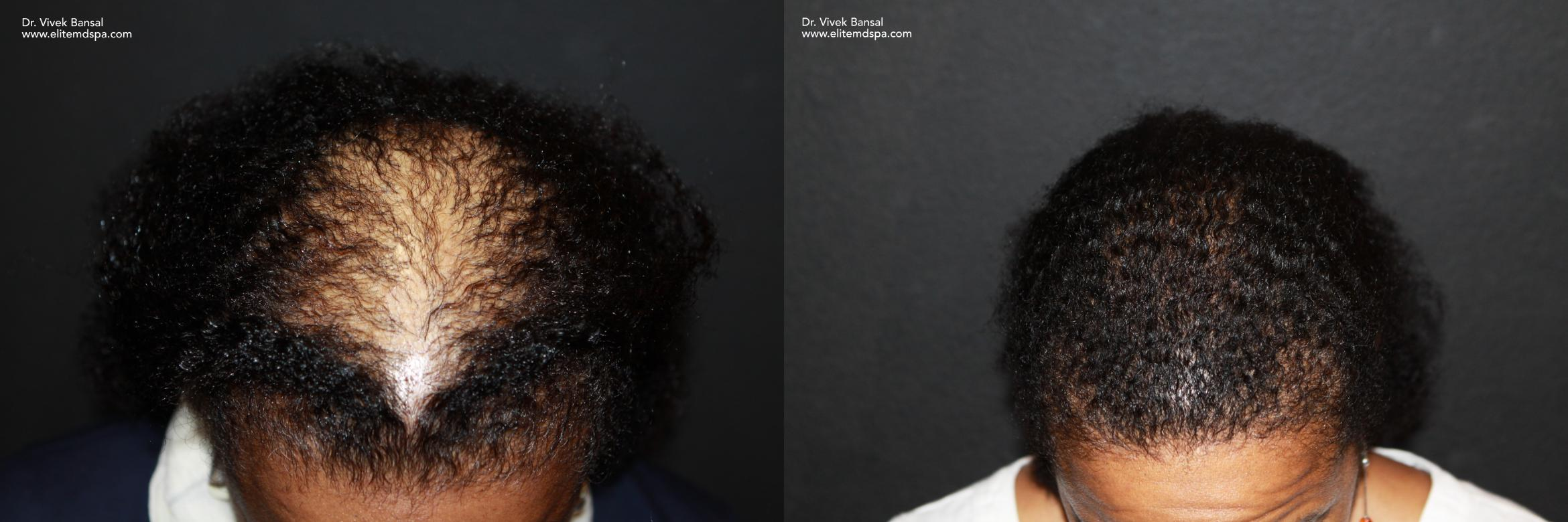 SmartGraft Hair Transplant Case 37 Before & After Top of Head Front | Houston, TX | DermSurgery Associates