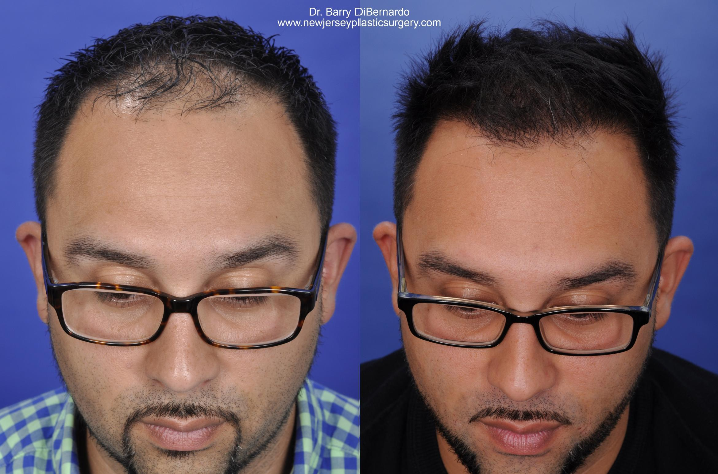 SmartGraft Hair Transplant Case 40 Before & After Front | Houston, TX | DermSurgery Associates