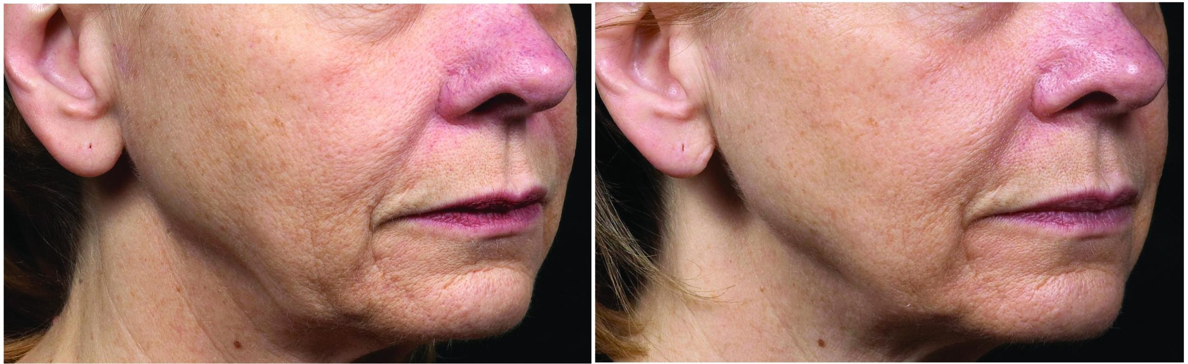 Thermage Case 25 Before & After Right Oblique | Houston, TX | DermSurgery Associates